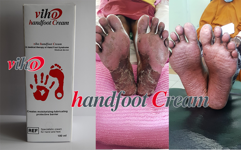 Handfoot Cream